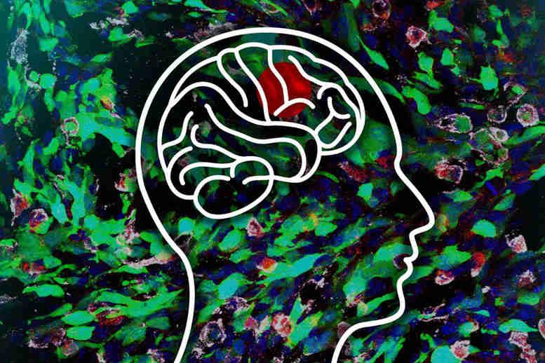 麻省理工学院研究人员揭示了停留脑肿瘤的新策略