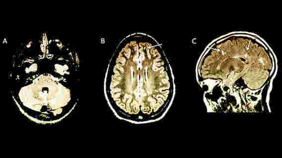 研究人员使用MRI大脑扫描来揭示儿童MS风险